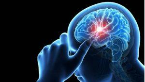 Alcoholic Brain